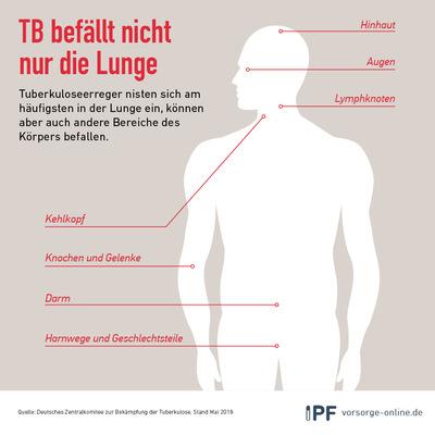TB und andere Organe